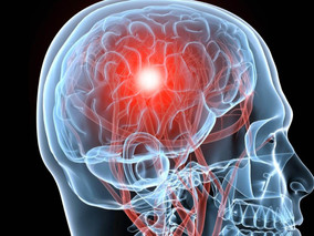 Blunt Force Head Trauma - Common Causes And The Effects It Can Cause