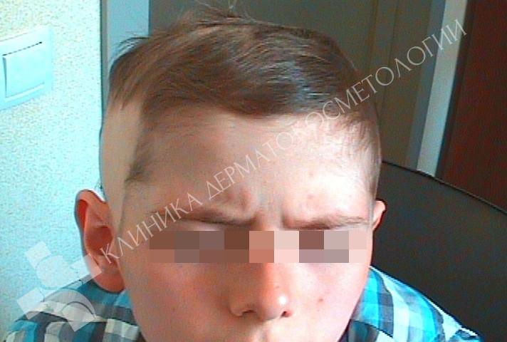 Через 6 месяцев после лечения появились брови