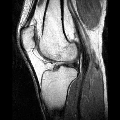 knee_mri_sagittal_t1_003.jpg
