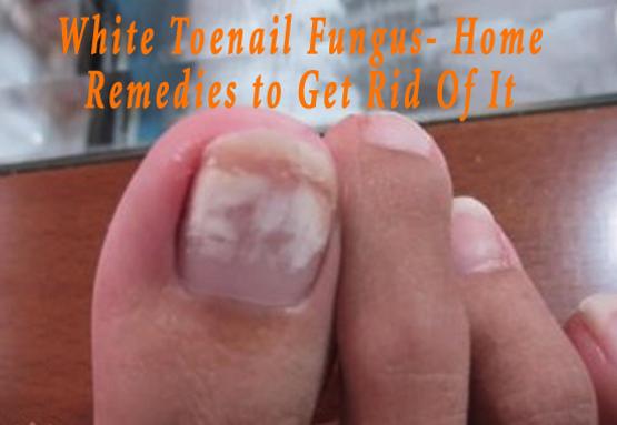 White Toenail Fungus- Home Remedies to Get Rid Of It