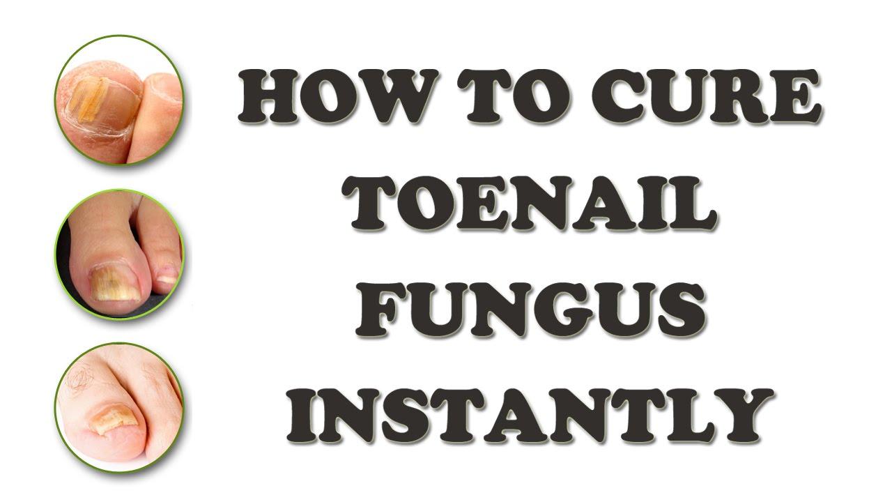 How to Get Rid of Toenail Fungus?   Toenail Fungus: Causes ...