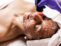oxygeneo facial brampton.jpg