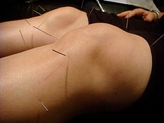 Acupuncture in Cheshire