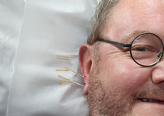 Acupuncture Pain Clinic