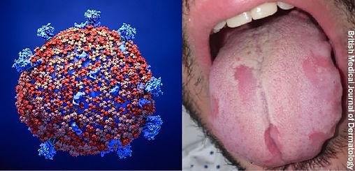 1140-corona-virus.jpg