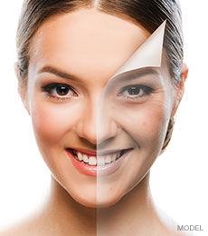 Anti-Acne Chemical Peel