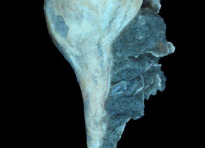 Fluorescent Whelk Fossil from Rucks' Pit, Fort Drum, Florida