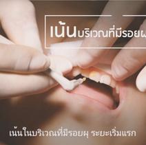 คลิปวิธีการเคลือบฟัน