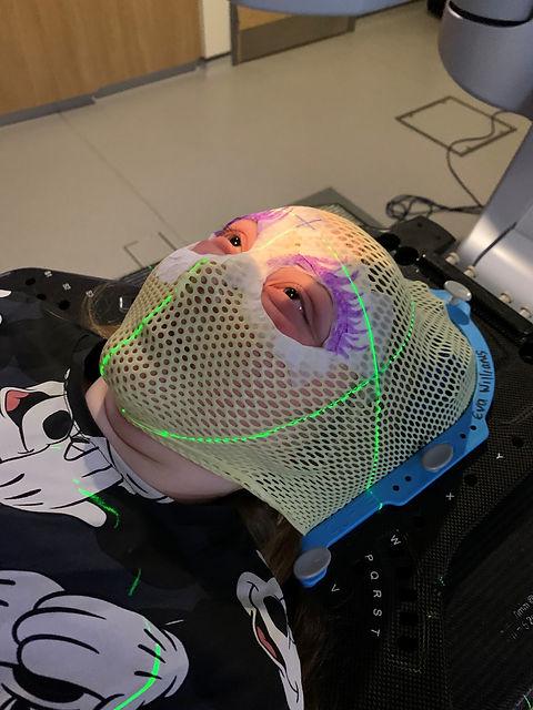 Radiotherapy 2.jpg