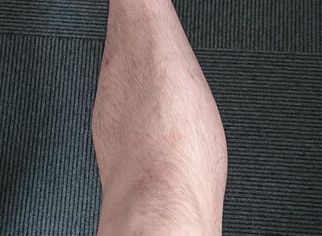 膝の痛みに効くつぼ ~つぼを使った応急手当て~