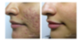 ACNE 3 MOS 1.png
