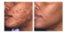 ACNE 3 MOS 2.png