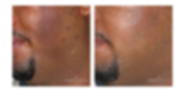 HYPERPIGMENTATION MALE 6 MOS.png