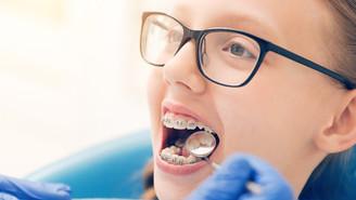 Ortodontia: 6 dicas de higiene para quem usa aparelho fixo
