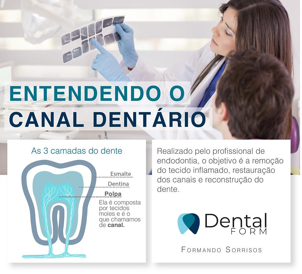Cana dentário