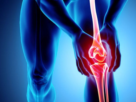 Acupuncture Helps Knee Osteoarthritis