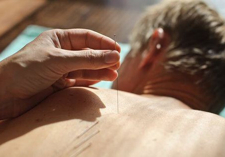 Acupuncture for Stroke Treatment