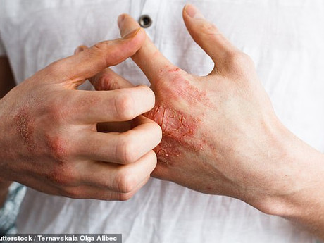 Tired of the insatiable itch of eczema?