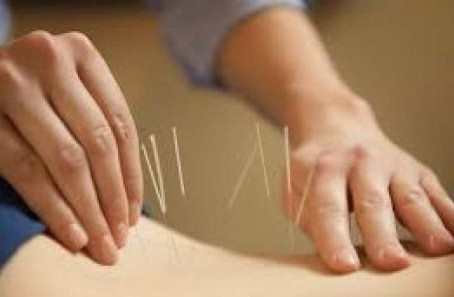 Acupuncture Eases Lower Back Pain