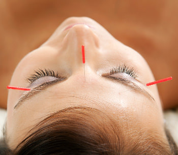 Acupuncture May Help Lazy Eye
