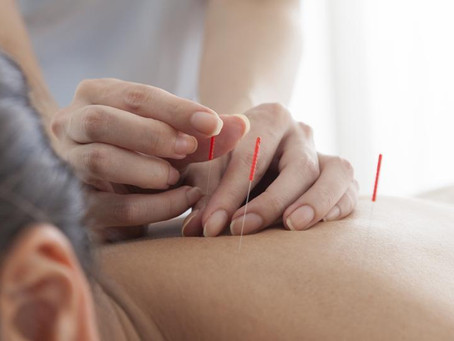Acupuncture Cuts Cocaine Addiction