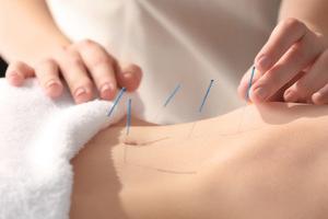 Acupuncture for In Vitro Fertilization?