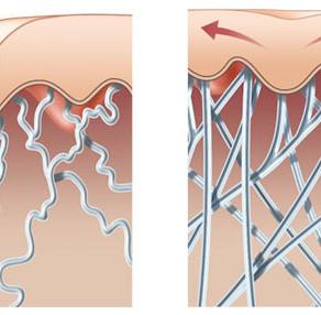 Sanfte Wellen für eine straffere Haut- die Radiofrequenzbehandlung