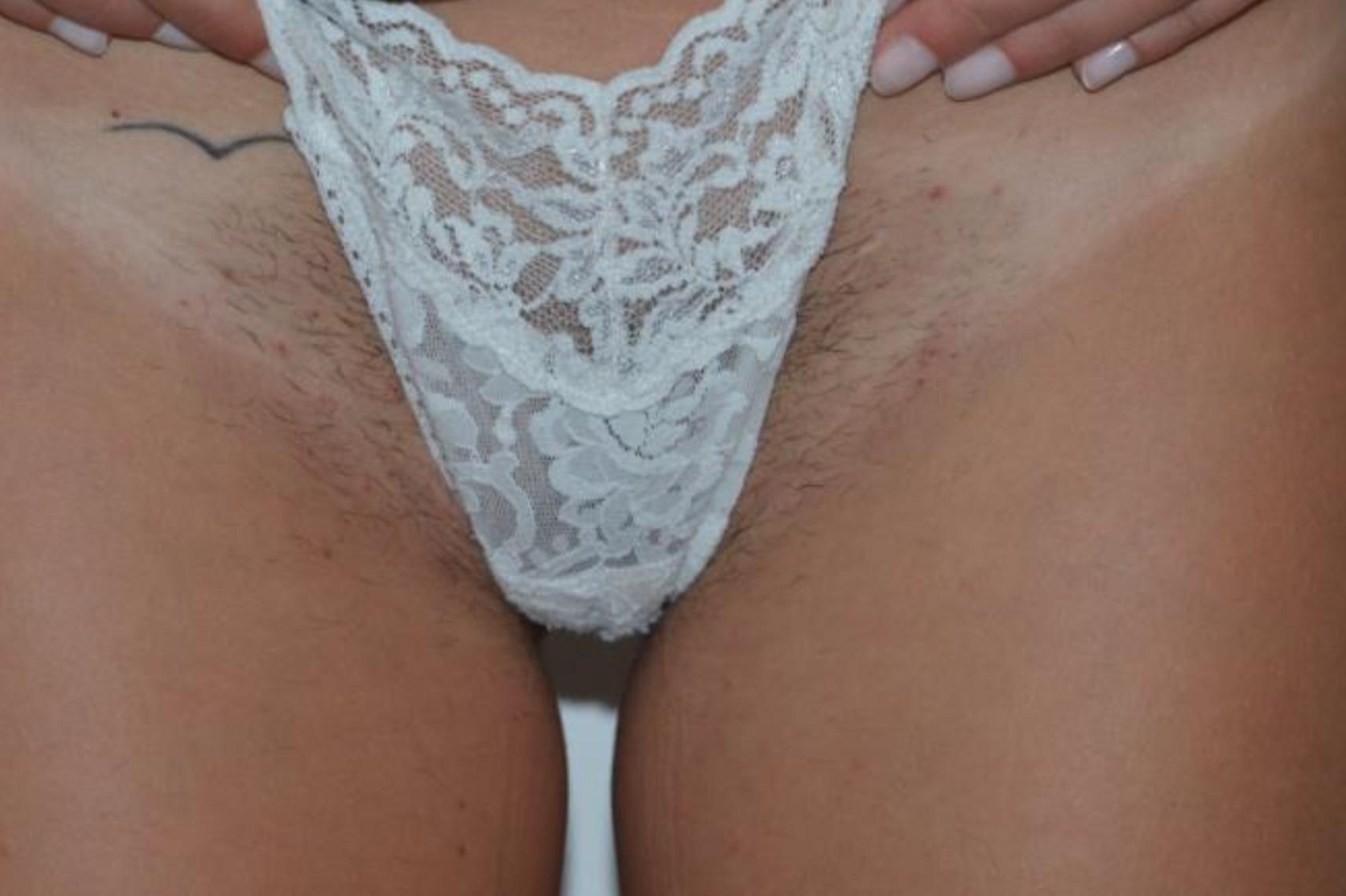 Motus X - Bikini 1 - Before