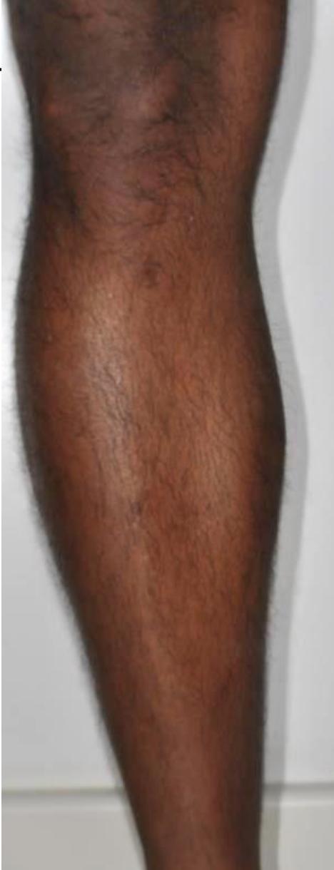 Motus X - Leg - Before