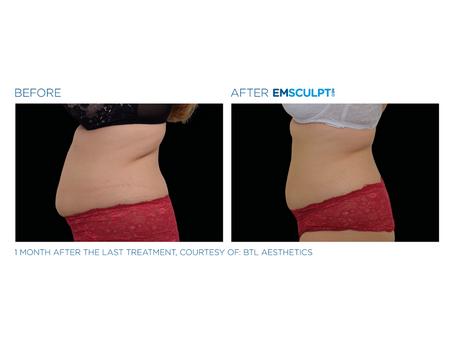 Emsculpt NEO: Lose Fat, Build Muscle
