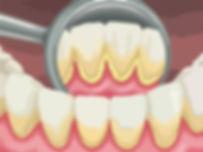 мягкие зубные отложения.jpg