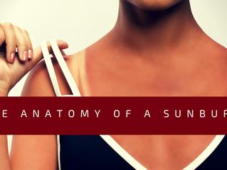 The Anatomy of a Sunburn