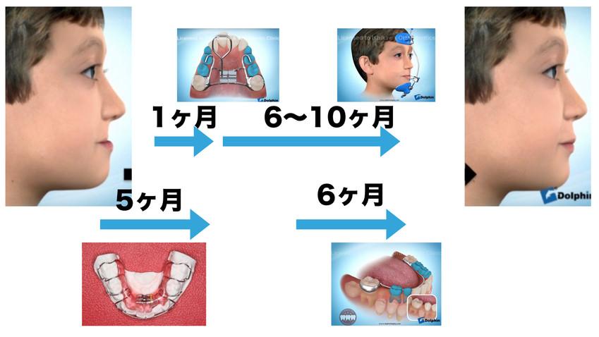 コンサル 顎顔面②.016.jpeg