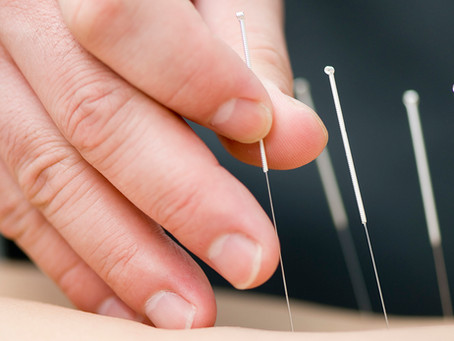 Acupuncture, comment çà fonctionne?