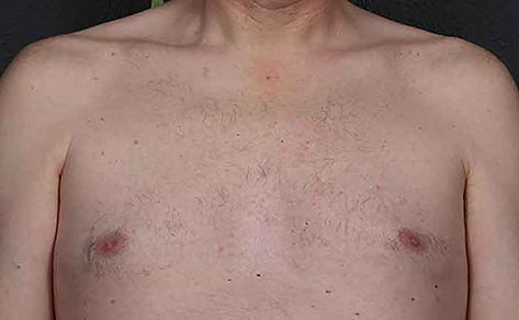 excel-HR-Chest-area-Cutera-P2-after-2-tx