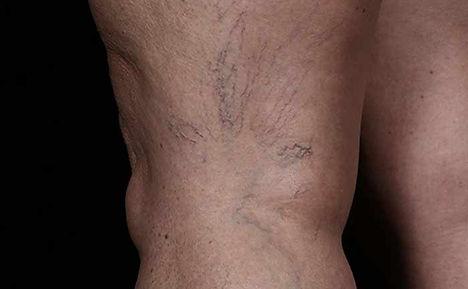 excelHR-veins-legs-Cutera-P1-before.jpg