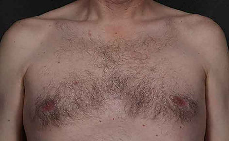 excel-HR-Chest-area-Cutera-P2-before.jpg