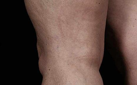 excelHR-veins-legs-Cutera-P1-after2txs.j