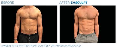 Emsculpt_PIC_Ba-card-male-abdomen-108_EN