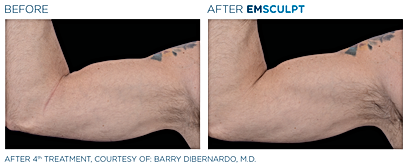 Emsculpt_PIC_Ba-card-male-arms-095_ENUS1