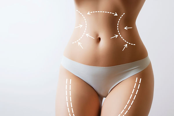 woman body with marks on stomach.jpg