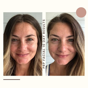 My PRP Facial Experience and Results with Better Life Franklin