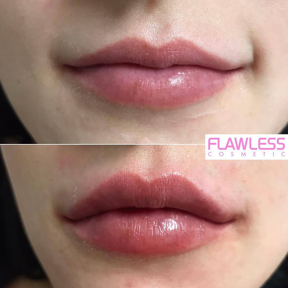 Before and After Lip Fillers at Flawless Cosmetic