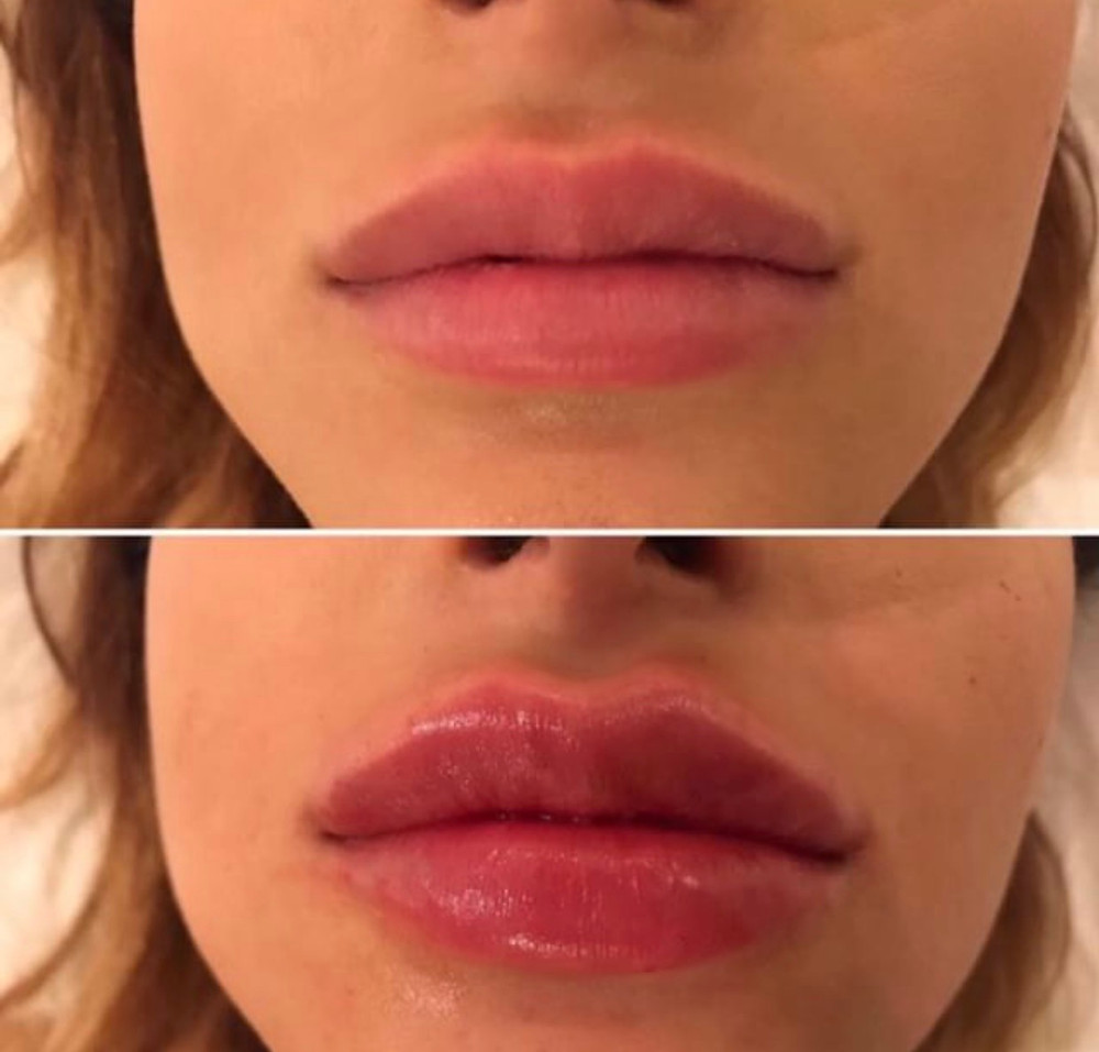 Lip injections by flawless cosmetics
