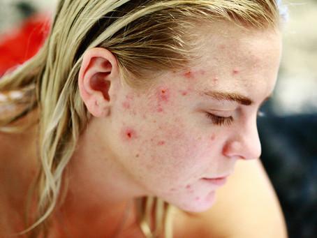 Comment se débarrasser de l'acné chez l'ado ou le jeune adulte ?
