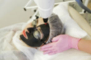 Procedure carbon peeling. Laser rejuvena