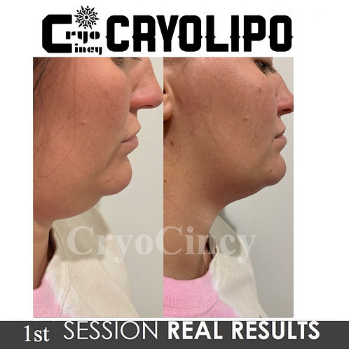 5 pack Chin/Neck reduction