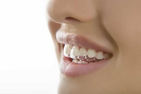 Зубы с надетыми стоматологическими элайнерами