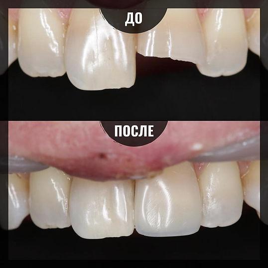 Реставрация переднего резца в клинике Лечим зубы