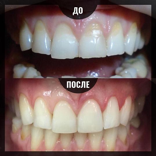Зубная реставрация шести зубов в клинике Лечим зубы Москва